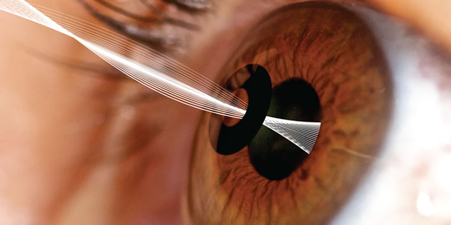 inlay-for-presbyopia
