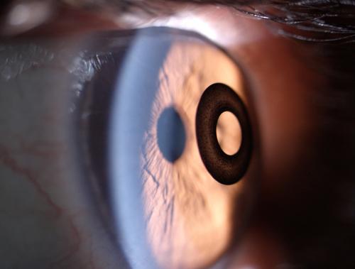 kamra-inlay-on-eye